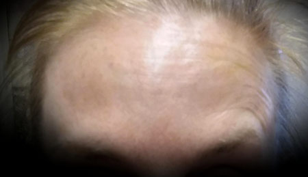 Muscle Relaxant forehead lines