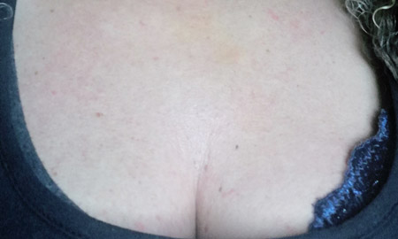 Profhilo treatment for decolletage